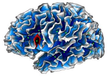 """Autisme : un """"faux pli"""" dans le cerveau ? (Le Point, janvier 2016)"""